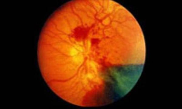 تأثیر دیابت بر چشم ها